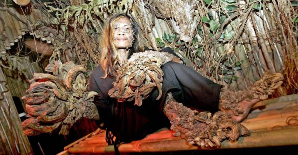 Dede Koswara is known as the Tree Man of Indonesia. Image credit: Barcroft