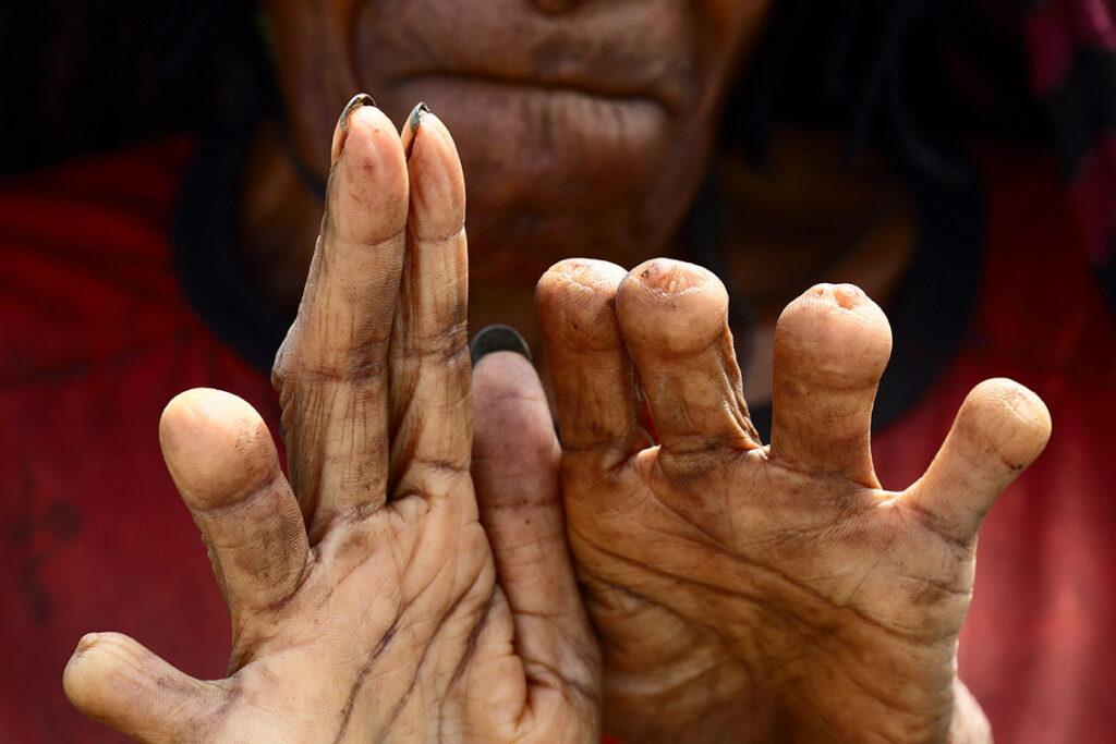bizarre rituals dani finger cutting
